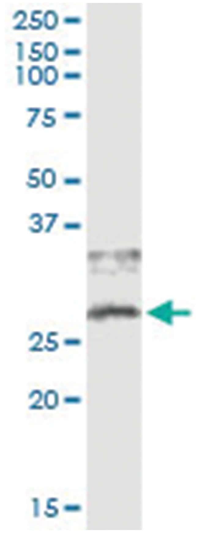 CD79B, Human, IP-WB Antibody Pair (PW1), Abnova 1 Set:Antibodies