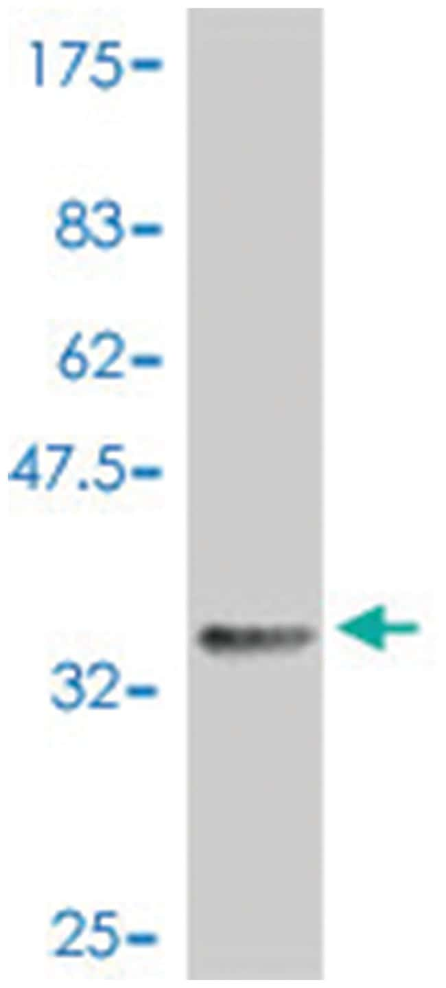 CDC2, Mouse, Polyclonal Antibody, Abnova 50µL; Unlabeled