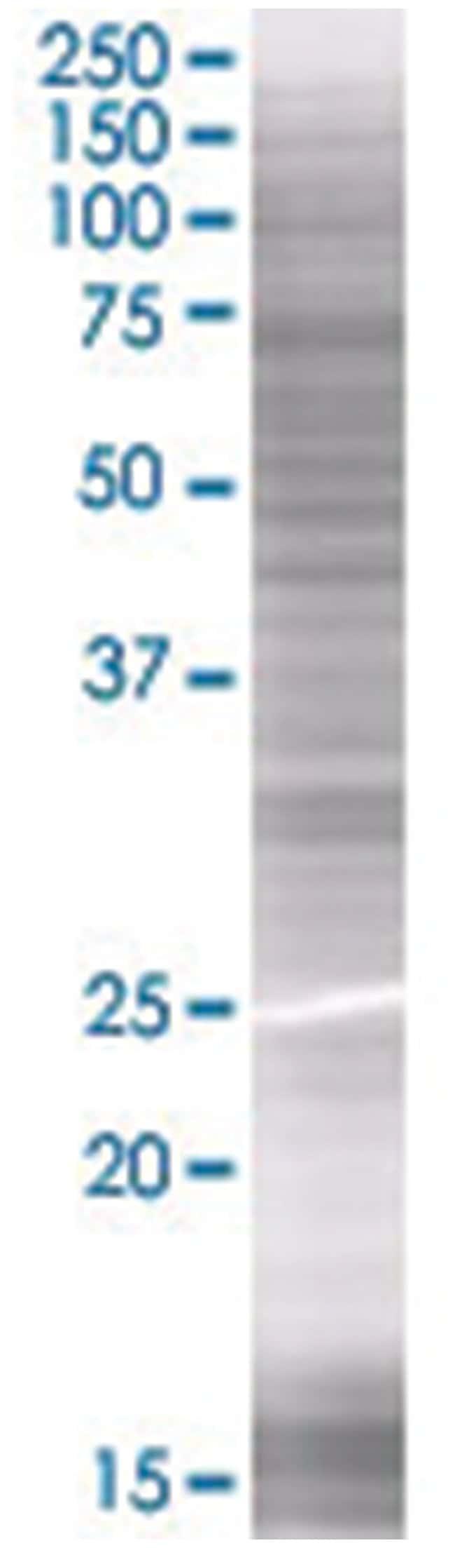 CDKN2C 293T Cell Overexpression Lysate (Denatured), Abnova 100µL:Life