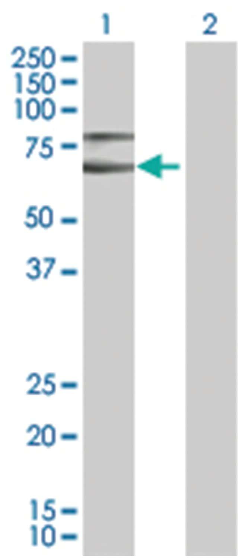 CHD2 293T Cell Overexpression Lysate (Denatured), Abnova 100µL:Life