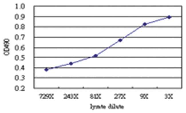 anti-CHML Matched Antibody Pair, Abnova 1 Set, Unlabeled:Life Sciences