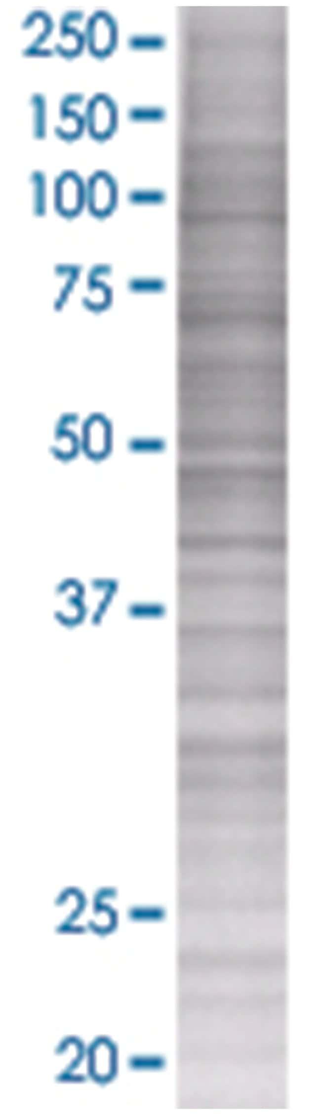 ERCC8 293T Cell Overexpression Lysate (Denatured), Abnova 100µL:Life