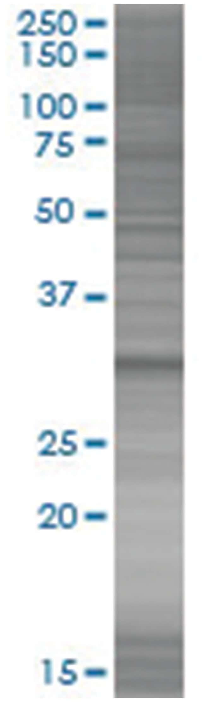 CNN2 293T Cell Overexpression Lysate (Denatured), Abnova 100µL:Life