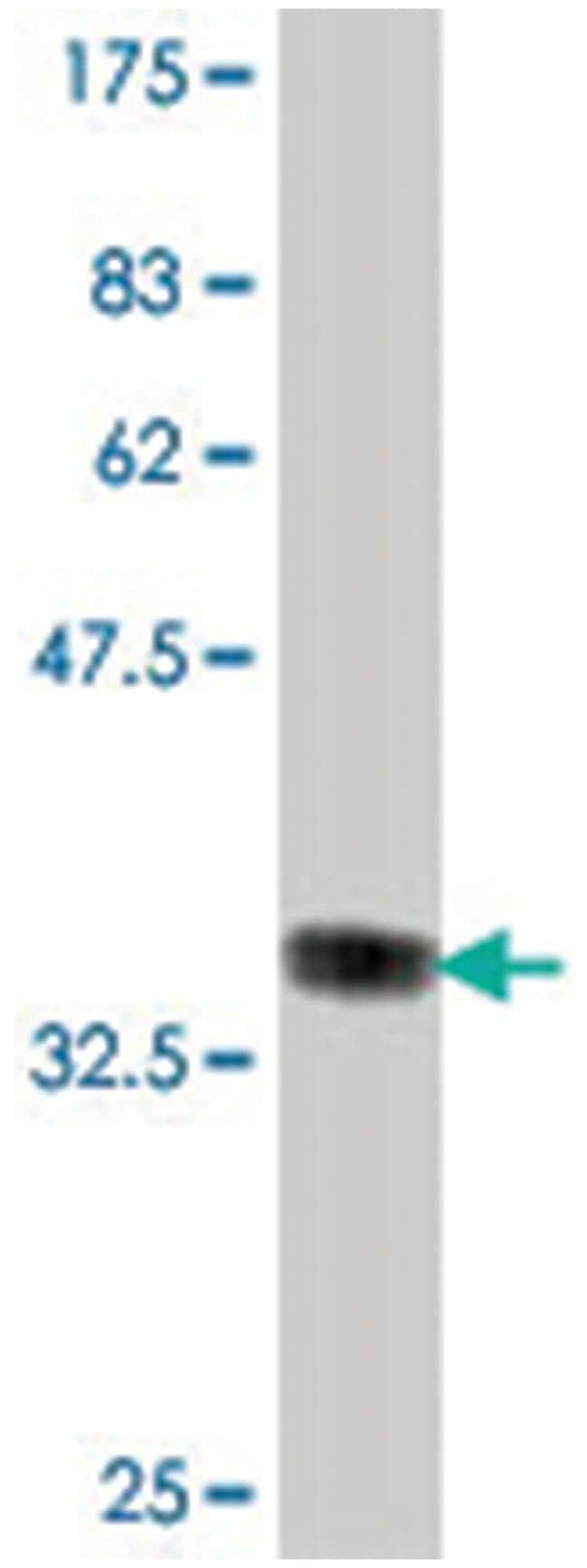 COX6B1, Mouse, Polyclonal Antibody, Abnova 50µL; Unlabeled