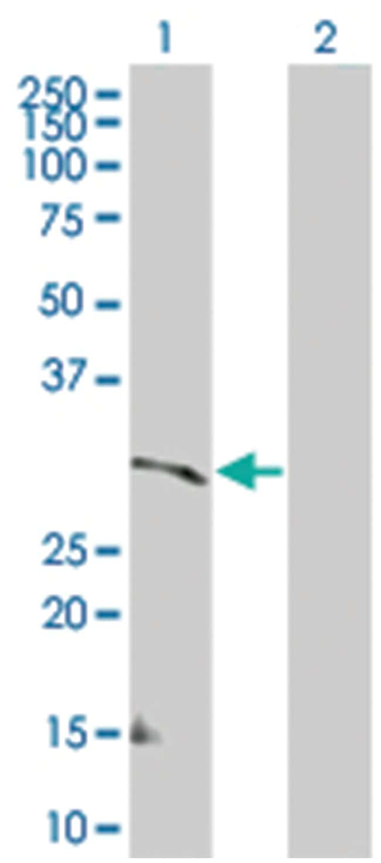 CSF2RA 293T Cell Overexpression Lysate (Denatured), Abnova 100µL:Life