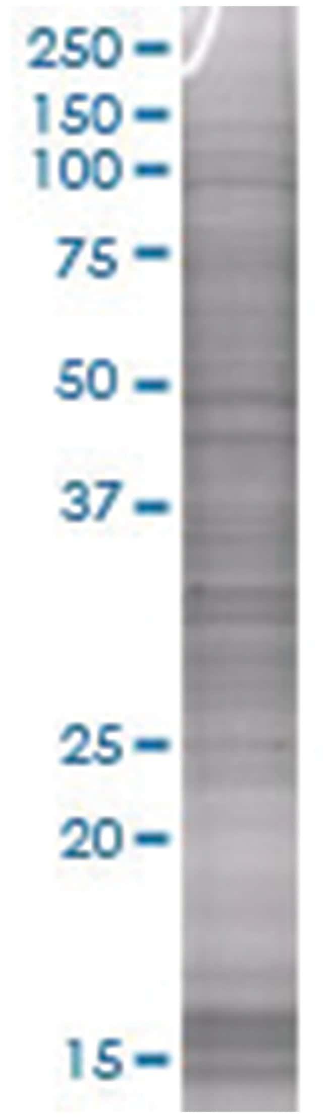 CTSS 293T Cell Overexpression Lysate (Denatured), Abnova 100µL:Life