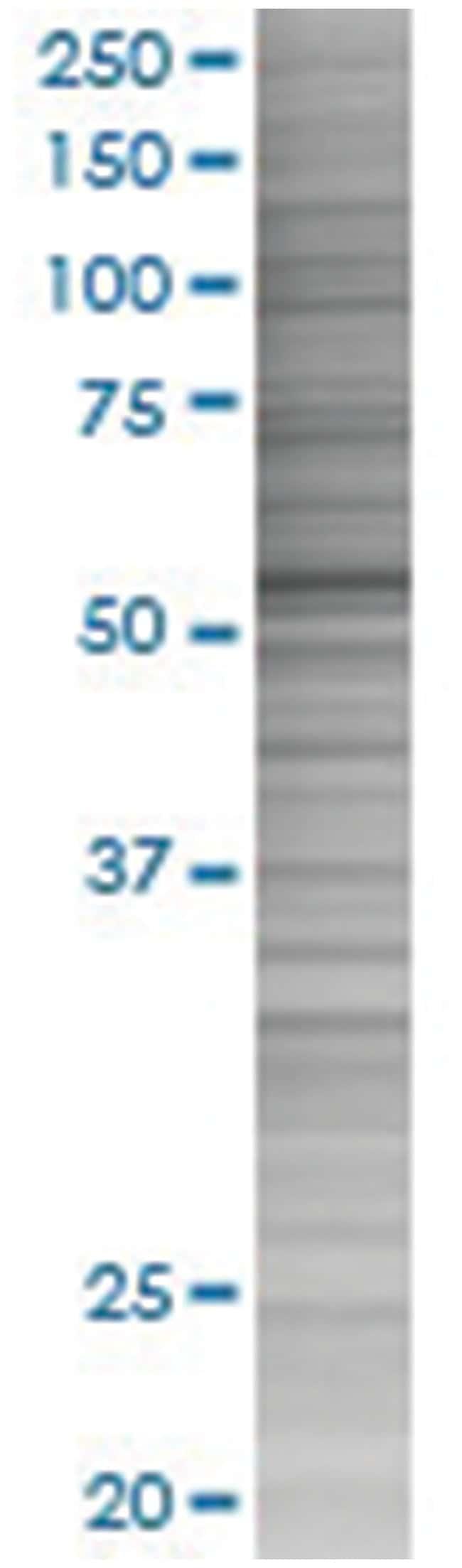 CYP1A2 293T Cell Overexpression Lysate (Denatured), Abnova 100µL:Life