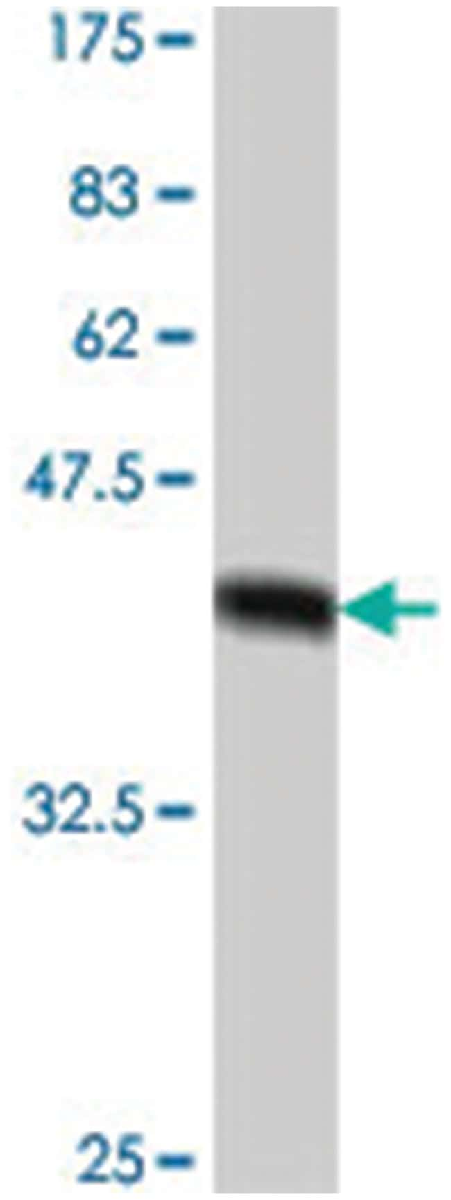 CYP2E1, Mouse, Polyclonal Antibody, Abnova 50µL; Unlabeled