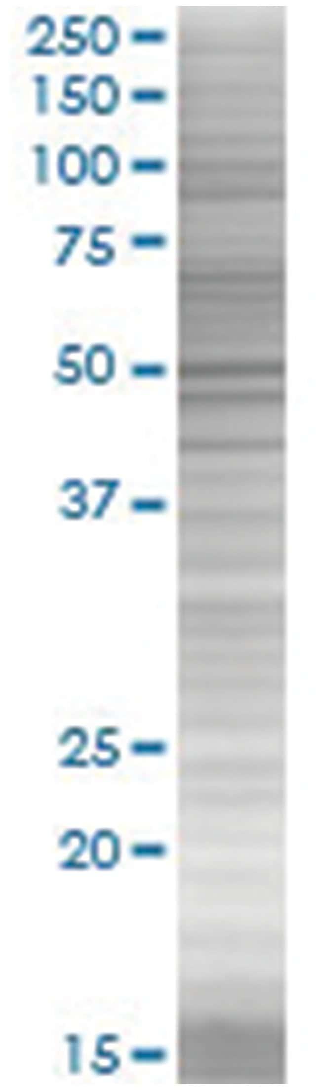 CYP2E1 293T Cell Overexpression Lysate (Denatured), Abnova 100µL:Life