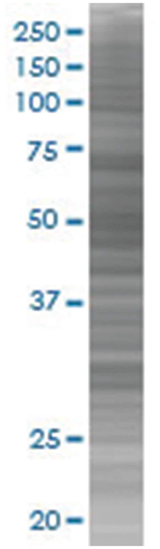 CYP11A1 293T Cell Overexpression Lysate (Denatured), Abnova 100µL:Life