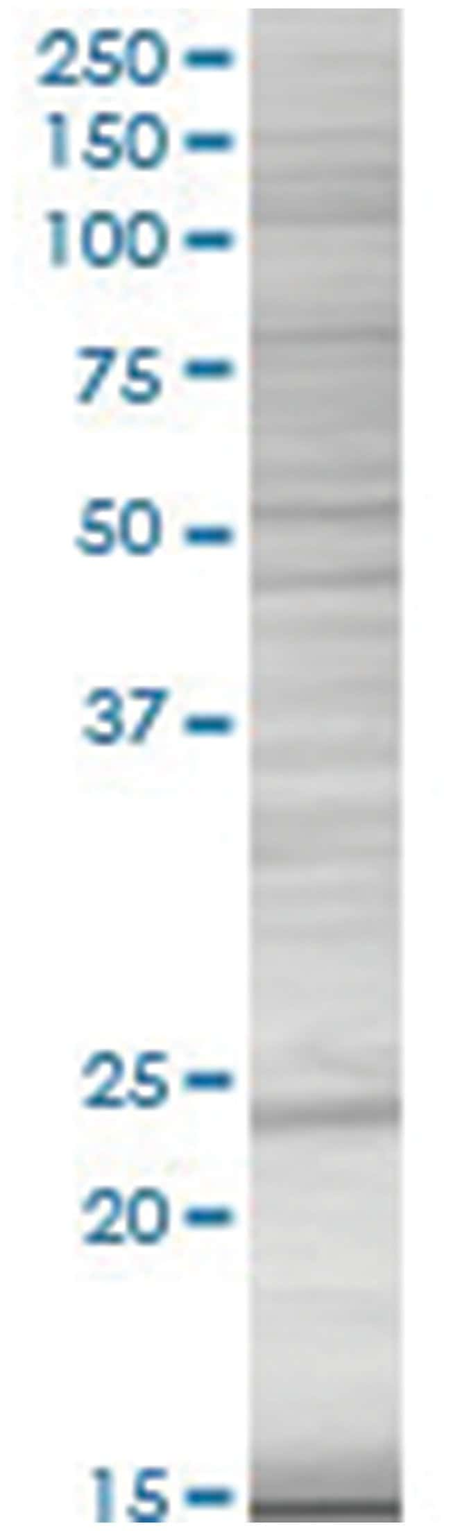 DHFR 293T Cell Overexpression Lysate (Denatured), Abnova 100µL:Life