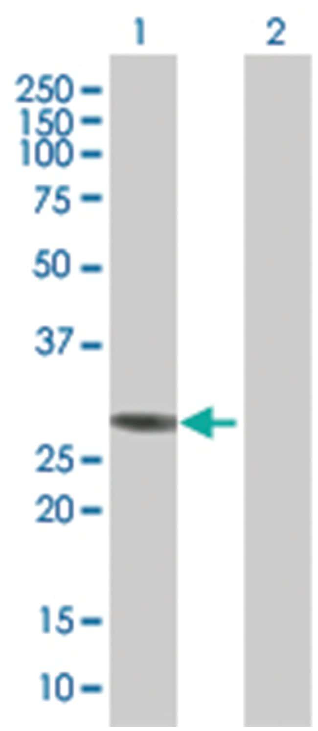 NQO1 293T Cell Overexpression Lysate (Denatured), Abnova 100µL:Life
