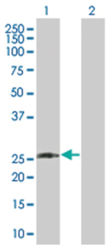 DLX1 293T Cell Overexpression Lysate (Denatured), Abnova 100µL:Life