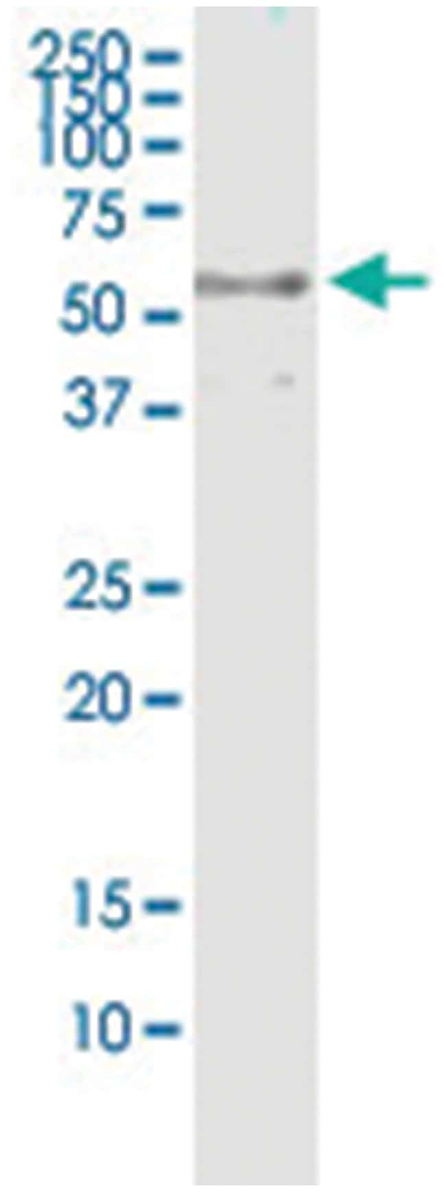 anti-DYNC1LI2, Human, IP-WB Antibody Pair, Abnova 1 Set:Life Sciences