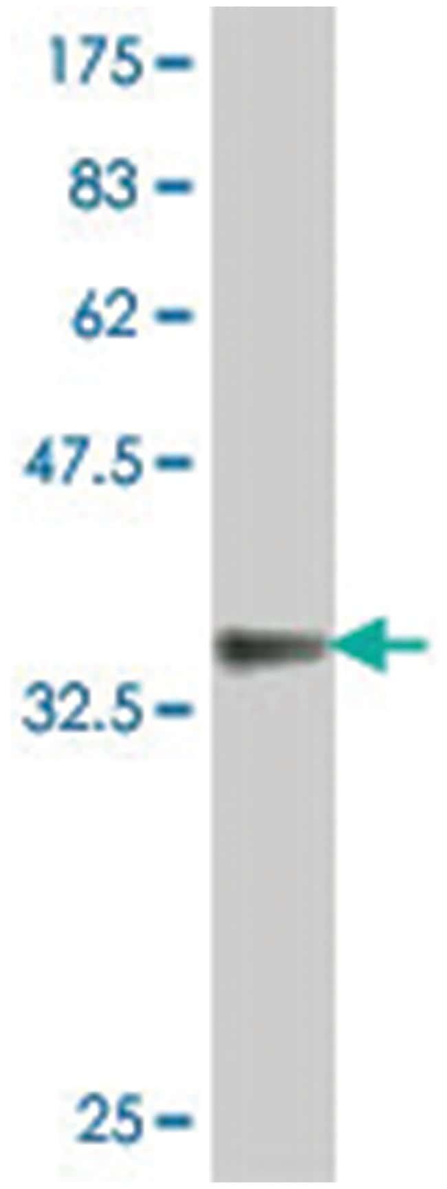 EFNA3, Mouse, Polyclonal Antibody, Abnova 50µL; Unlabeled
