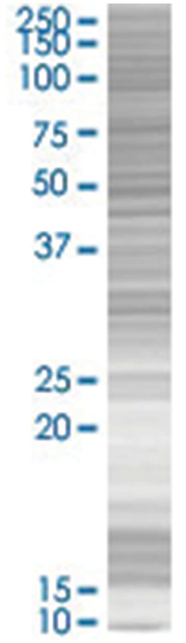STOM 293T Cell Overexpression Lysate (Denatured), Abnova 100µL:Life