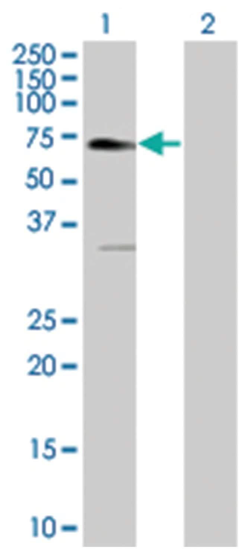 EPOR 293T Cell Overexpression Lysate (Denatured), Abnova 100µL:Life