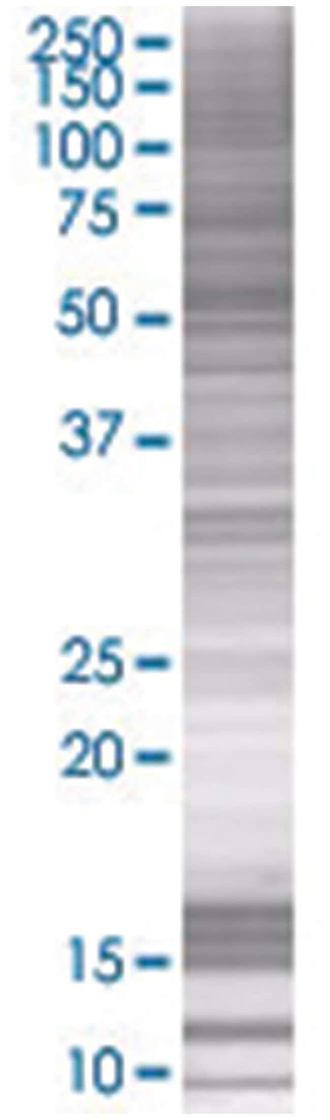 F9 293T Cell Overexpression Lysate (Denatured), Abnova 100µL:Life