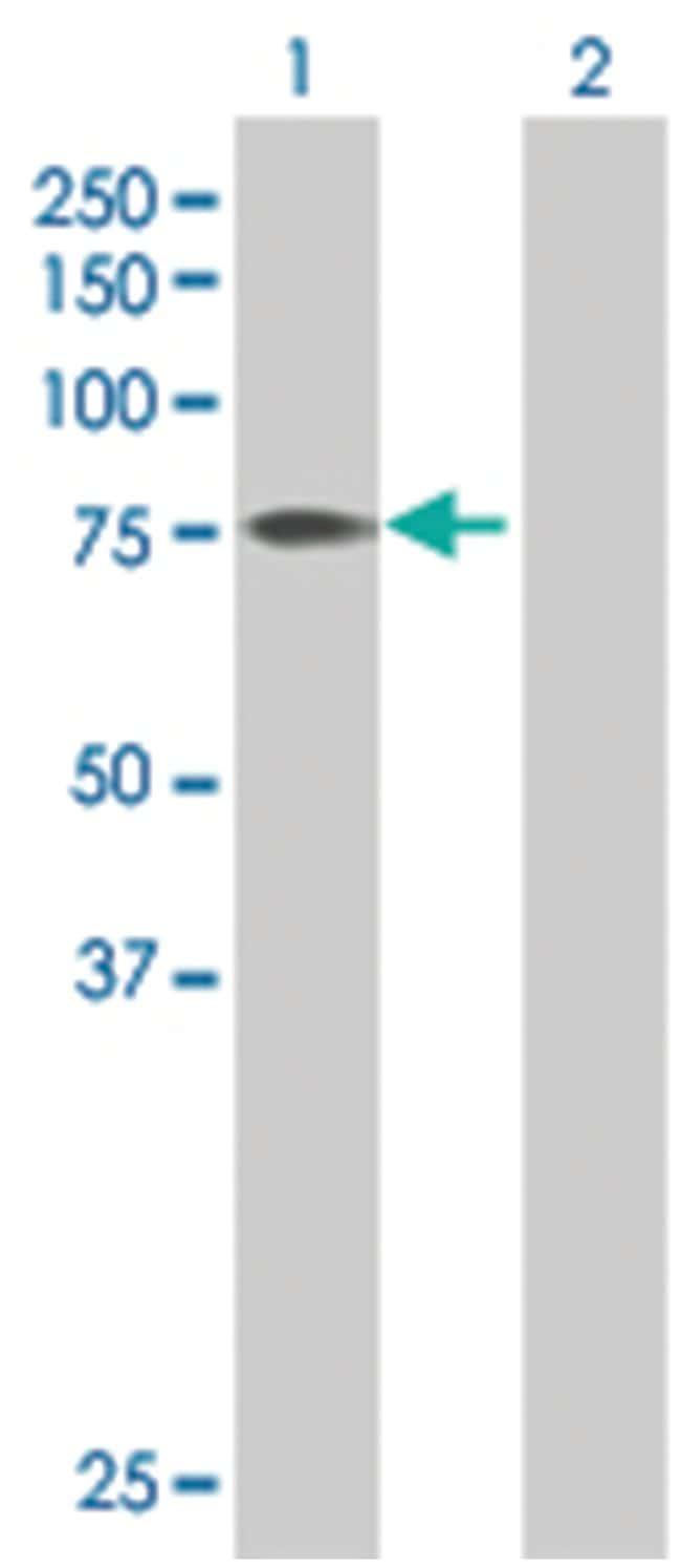 F11 293T Cell Overexpression Lysate (Denatured), Abnova 100µL:Life