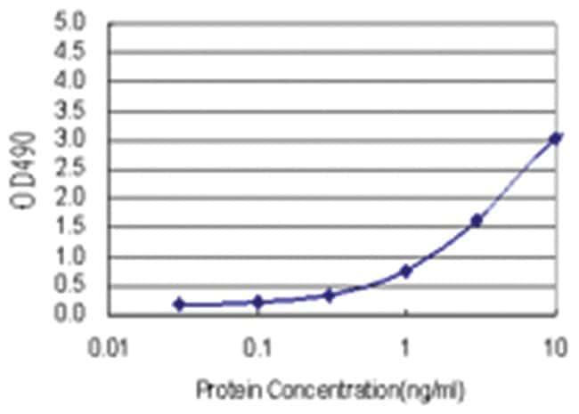 anti-FABP1 Ab-4 Matched Antibody Pair, Abnova 1 Set, Unlabeled:Life Sciences