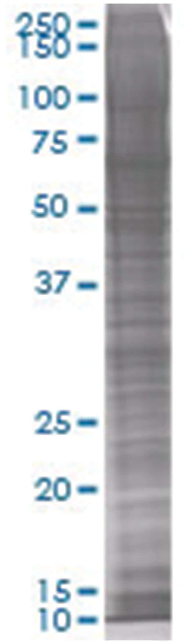 FANCA 293T Cell Overexpression Lysate (Denatured), Abnova 100μL:Protein