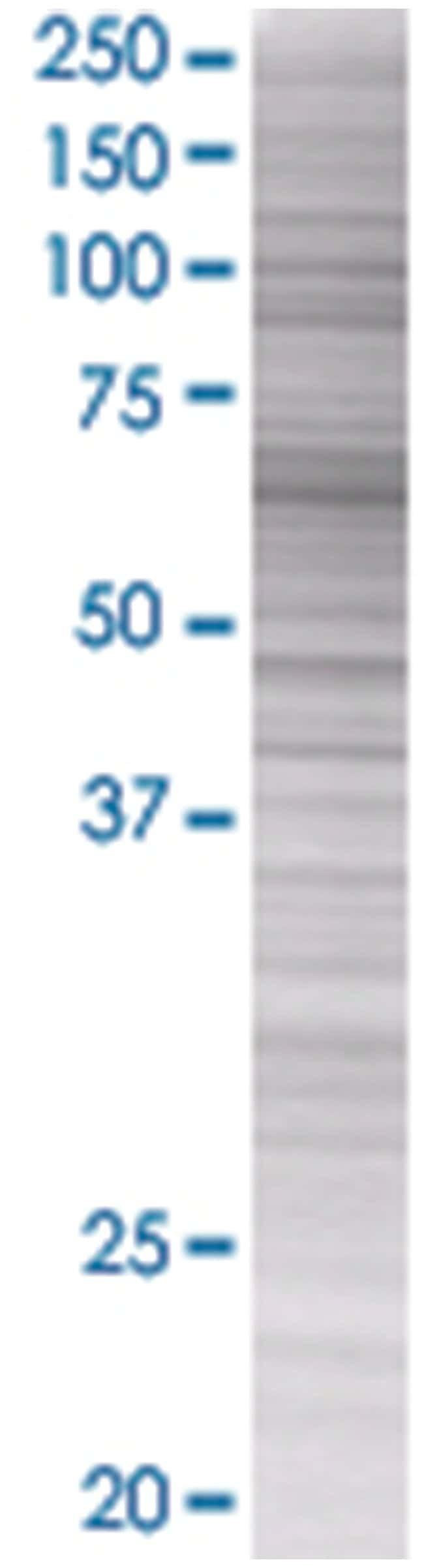 FANCG 293T Cell Overexpression Lysate (Denatured), Abnova 100µL:Life
