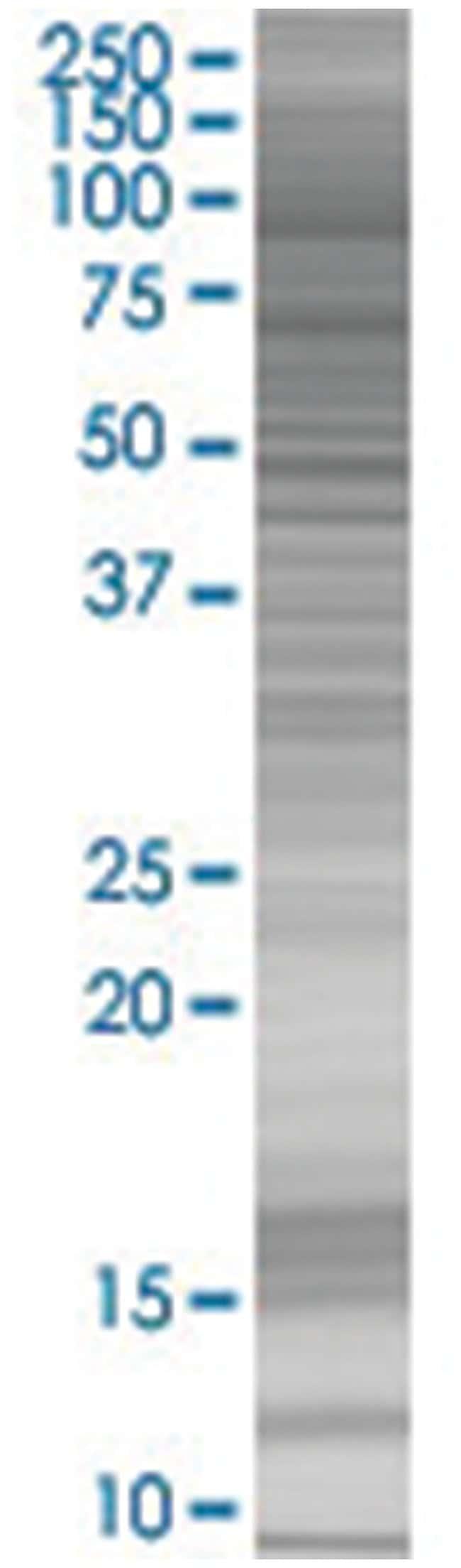 FAP 293T Cell Overexpression Lysate (Denatured), Abnova 100µL:Life