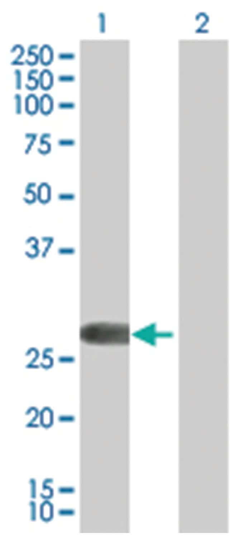 FHL2 293T Cell Overexpression Lysate (Denatured), Abnova 100µL:Life