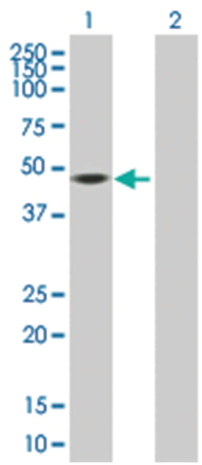 FKBP5 293T Cell Overexpression Lysate (Denatured), Abnova 100µL:Life