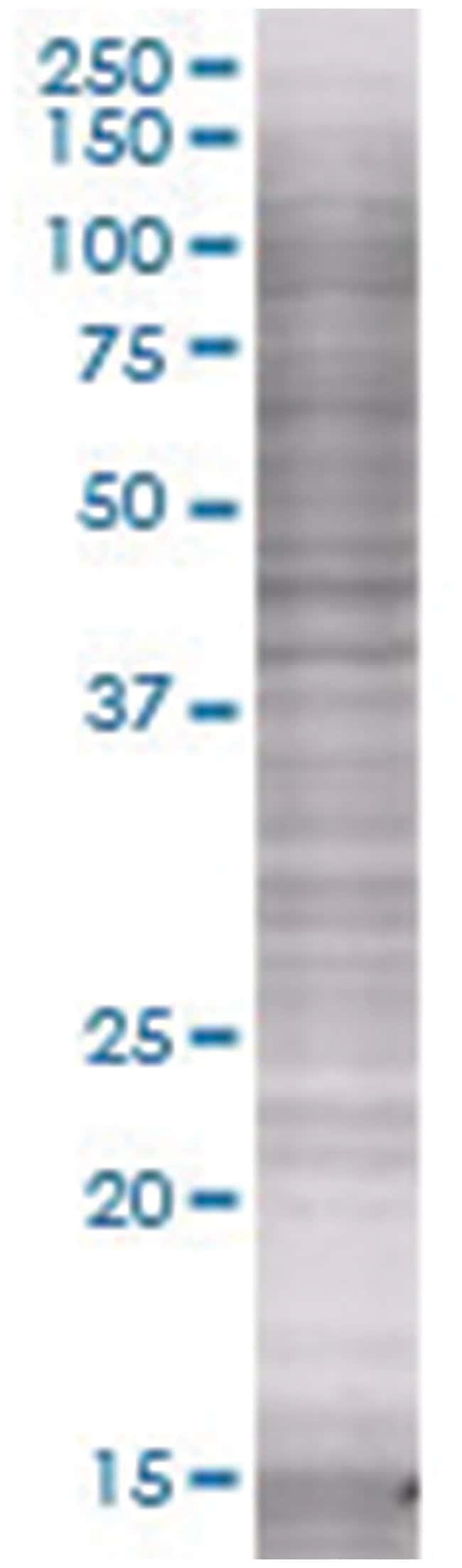 FLT1 293T Cell Overexpression Lysate (Denatured), Abnova 100µL:Life