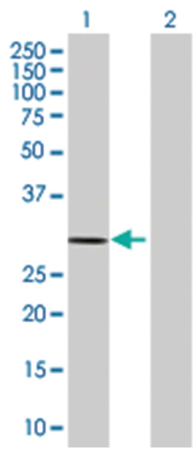 FMO5 293T Cell Overexpression Lysate (Denatured), Abnova 100µL:Life