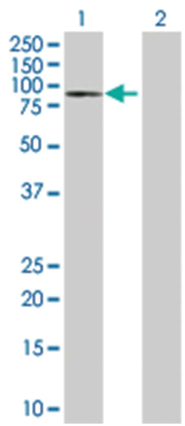 GGT1 293T Cell Overexpression Lysate (Denatured), Abnova 100µL:Life