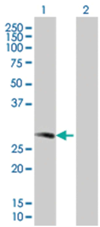 H1F0 293T Cell Overexpression Lysate (Denatured), Abnova 100µL:Life