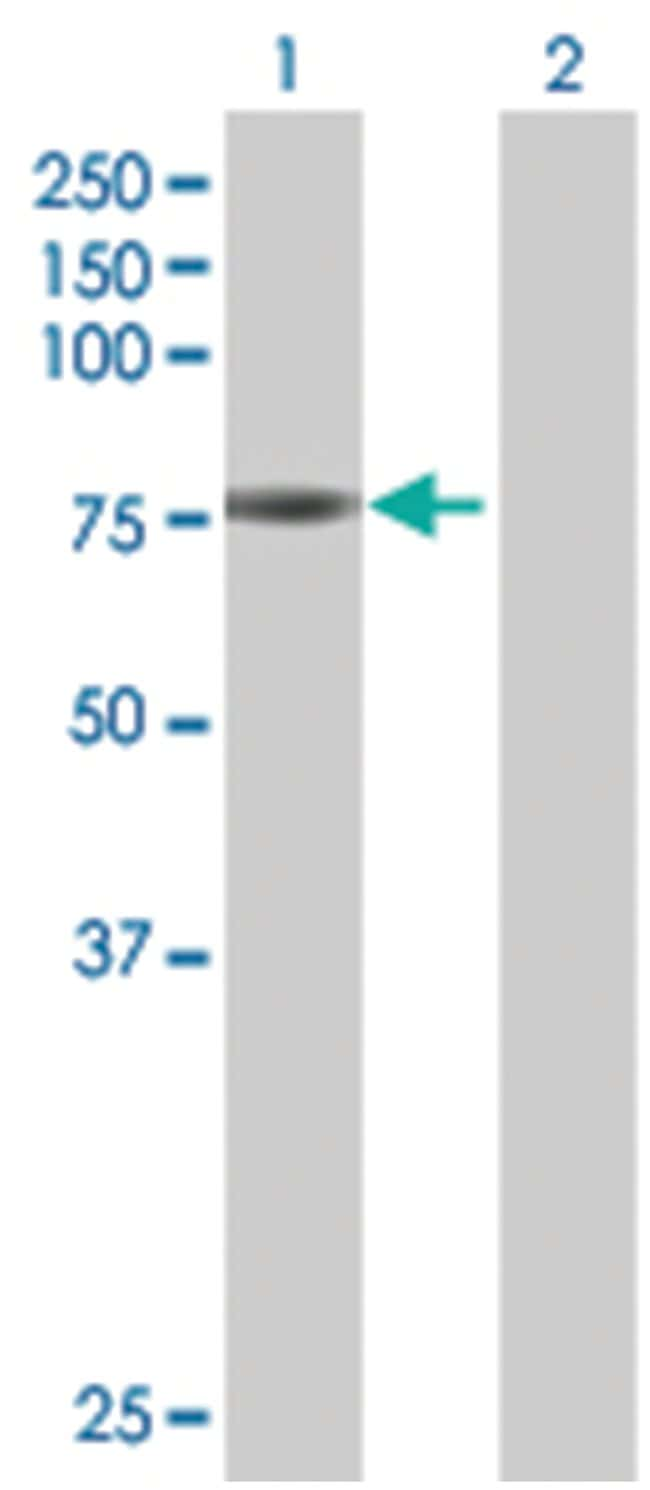 HAL 293T Cell Overexpression Lysate (Denatured), Abnova 100µL:Life