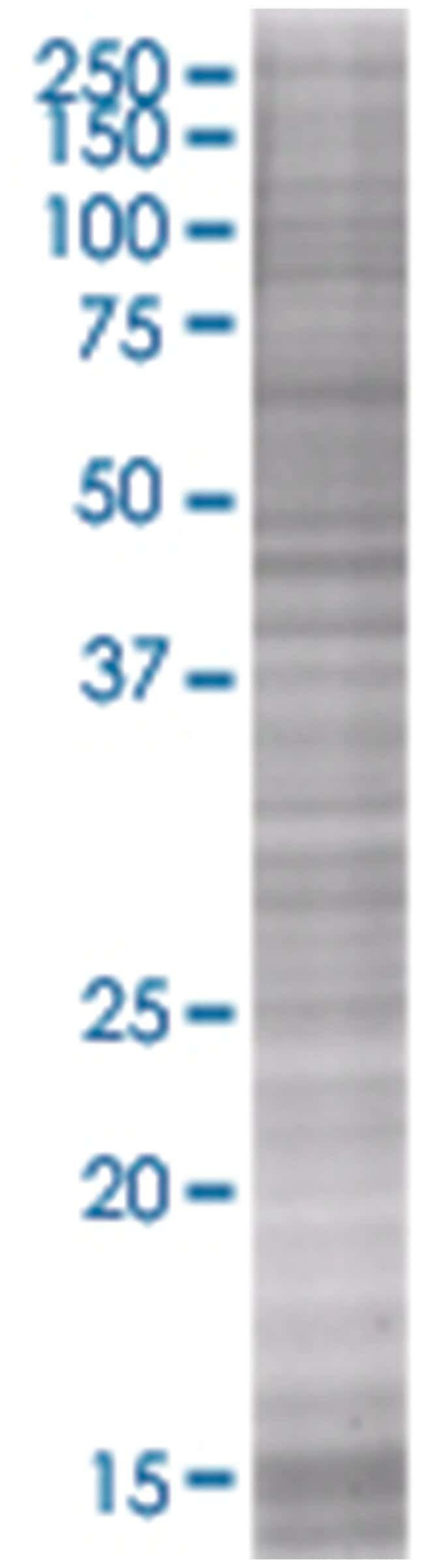 HLA-DOA 293T Cell Overexpression Lysate 2 (Denatured), Abnova 100µL:Life