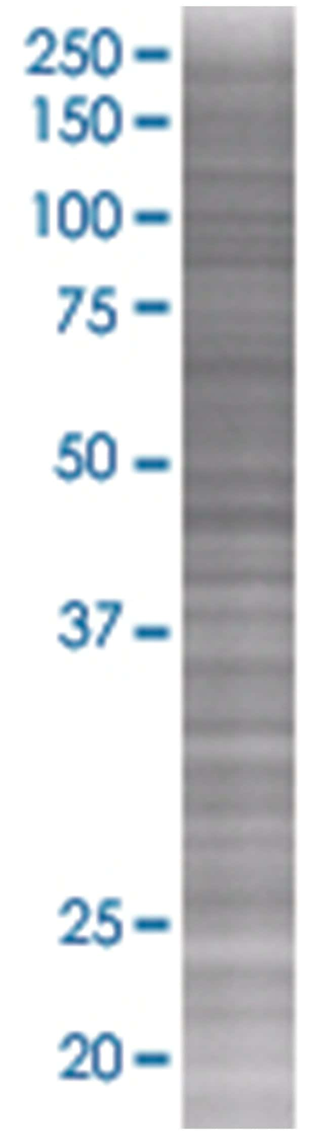 HLA-DPB1 293T Cell Overexpression Lysate (Denatured), Abnova 100µL:Life