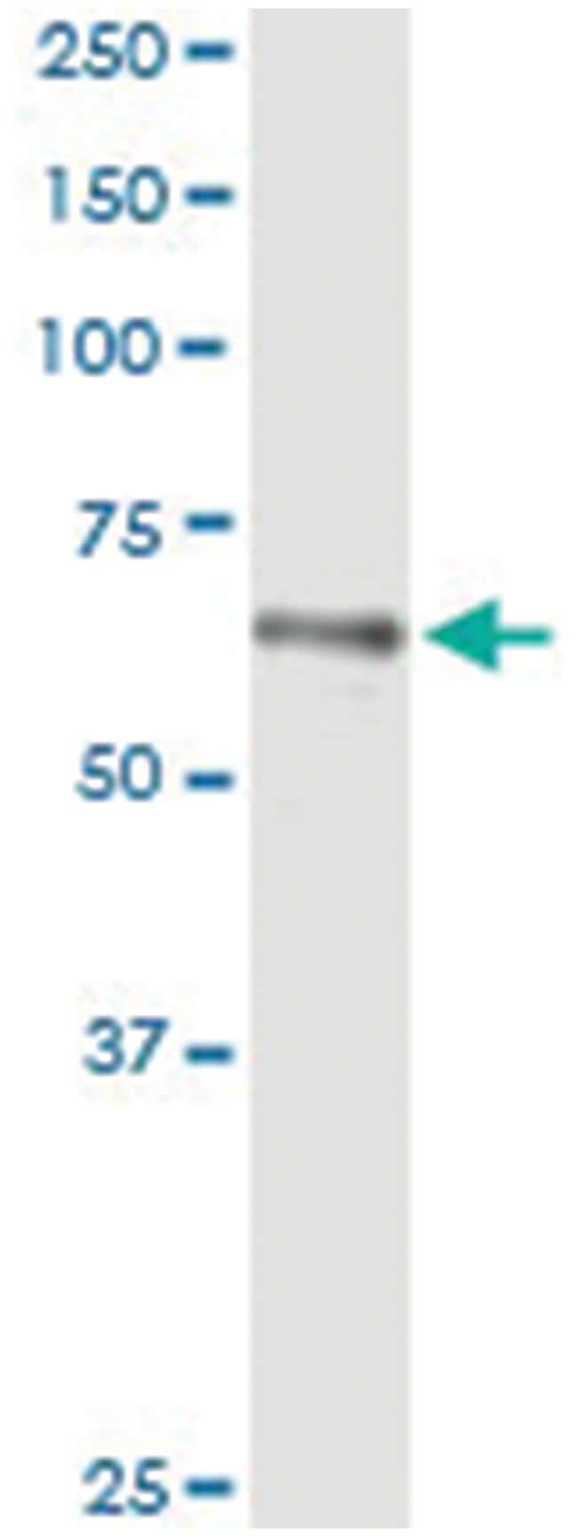 HLX, Human, IP-WB Antibody Pair (PW2), Abnova 1 Set:Antibodies