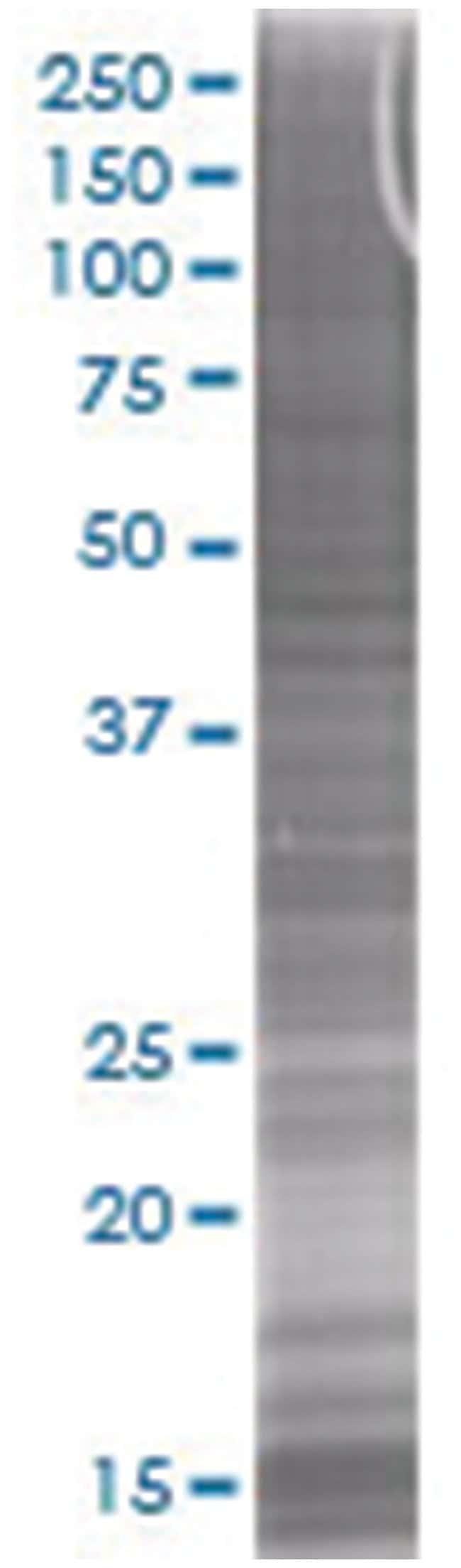 HMGA1 293T Cell Overexpression Lysate (Denatured), Abnova 100µL:Life