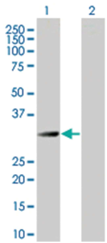 HMOX1 293T Cell Overexpression Lysate (Denatured), Abnova 100µL:Life