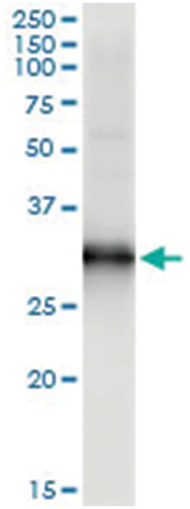 HOXB9, Human, IP-WB Antibody Pair (PW2), Abnova 1 Set:Antibodies