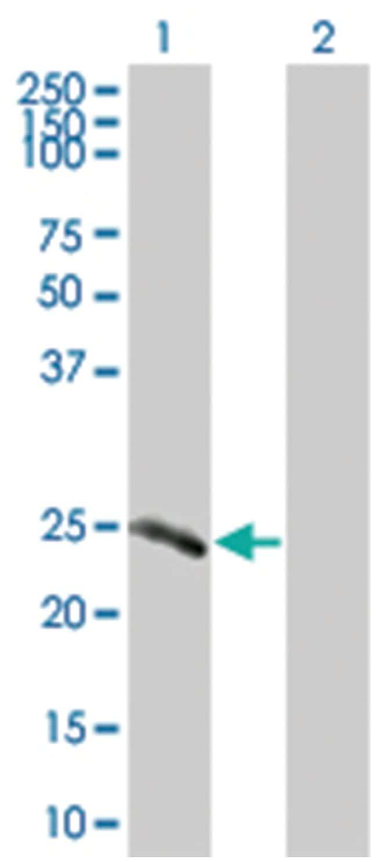 IGKC 293T Cell Overexpression Lysate (Denatured), Abnova 100µL:Life