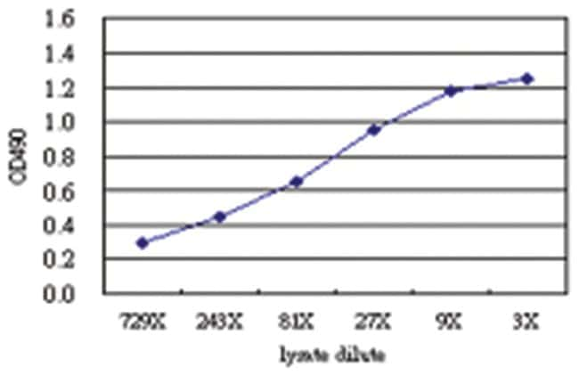anti-IL6 Matched Antibody Pair, Abnova 1 Set, Unlabeled:Life Sciences