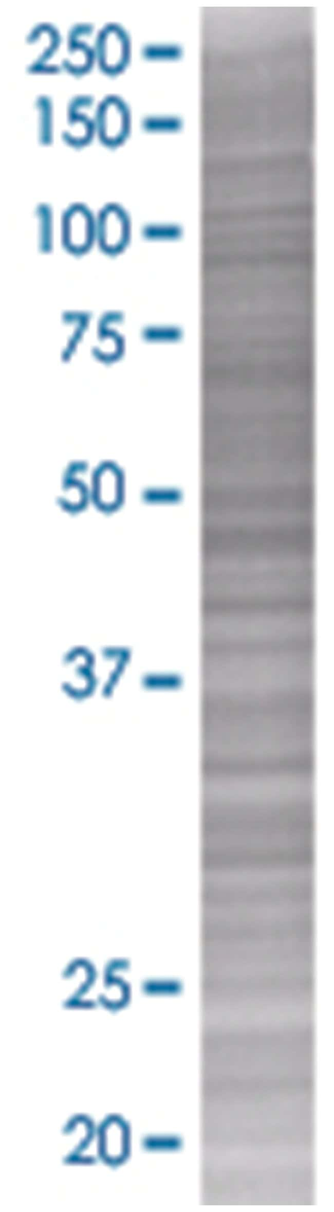 IL9 293T Cell Overexpression Lysate (Denatured), Abnova 100µL:Life