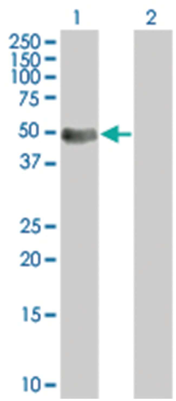IL12RB1 293T Cell Overexpression Lysate (Denatured), Abnova 100µL:Life