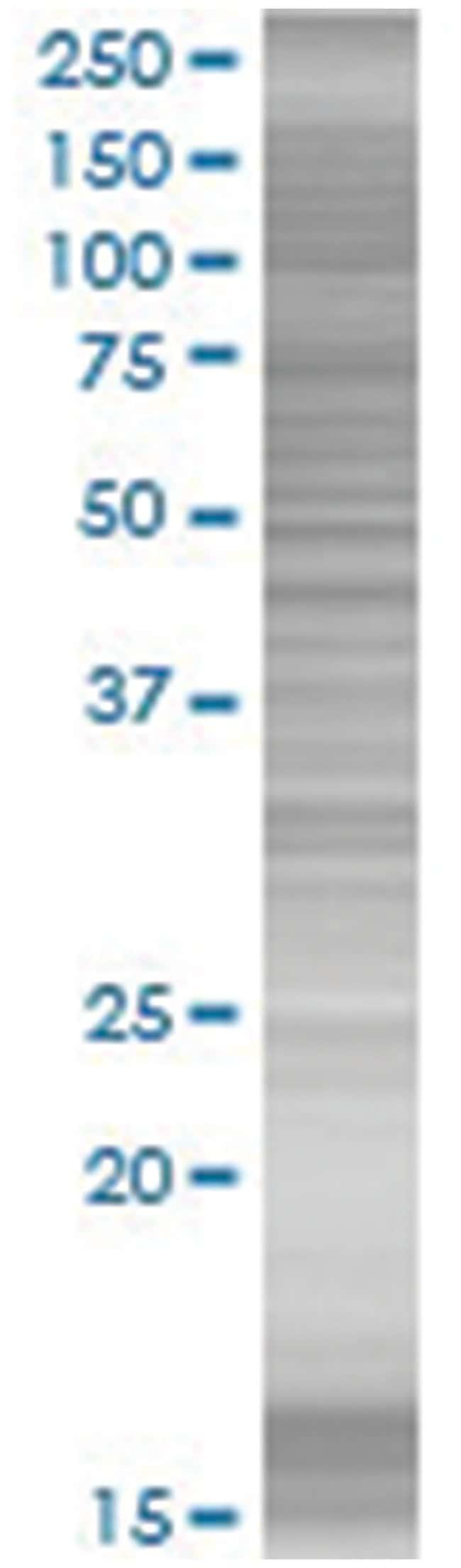 JUNB 293T Cell Overexpression Lysate (Denatured), Abnova 100µL:Life