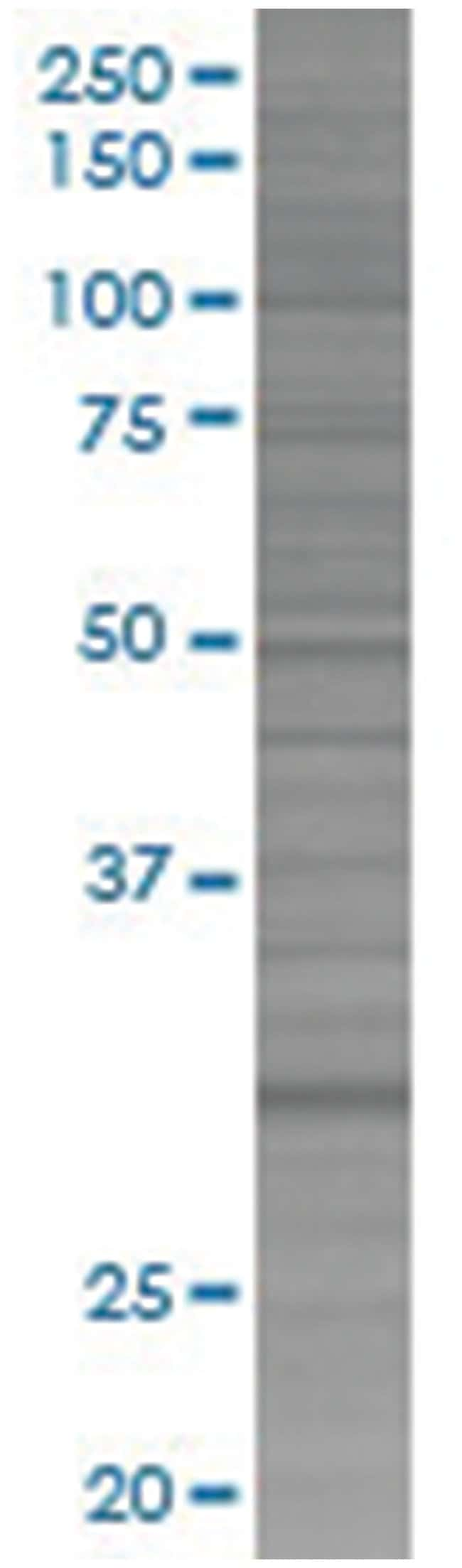 KHK 293T Cell Overexpression Lysate (Denatured), Abnova 100µL:Life