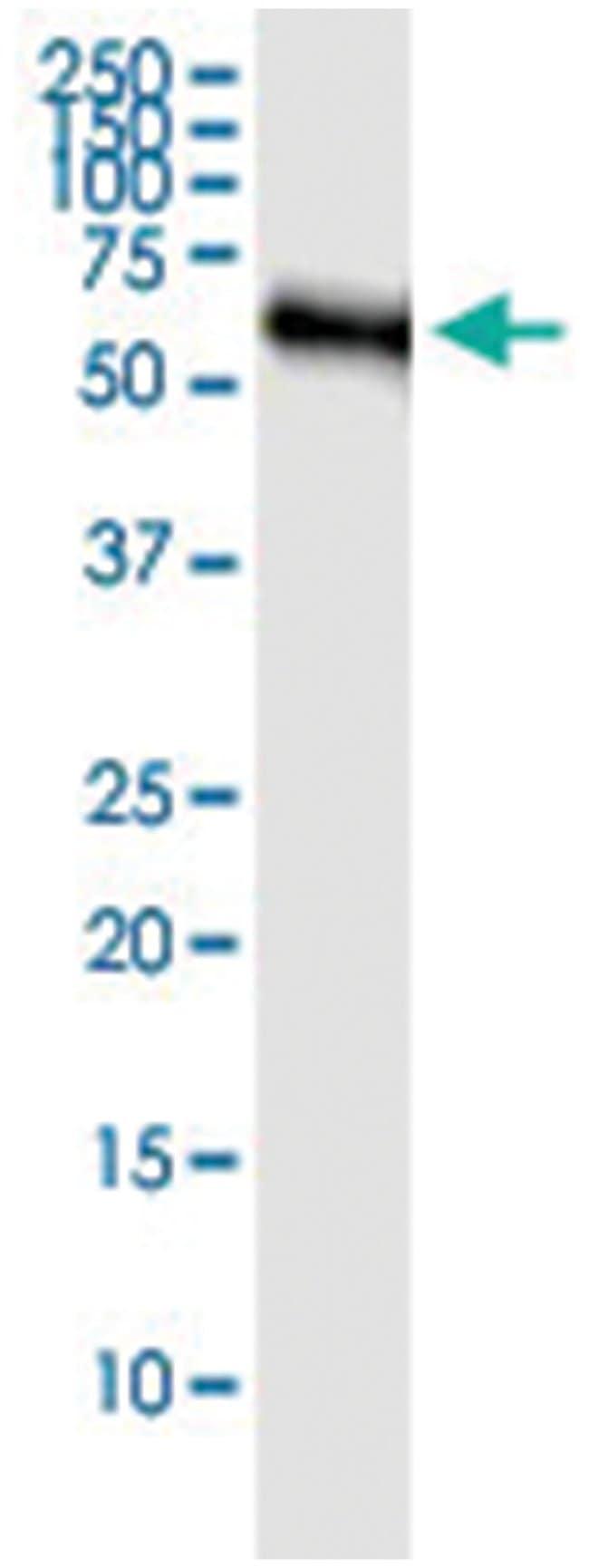 KNG1, Human, IP-WB Antibody Pair (PW3), Abnova 1 Set:Life Sciences