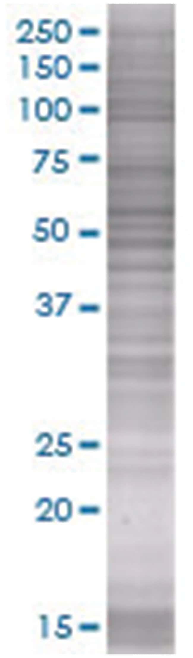 KRT8 293T Cell Overexpression Lysate 1 (Denatured), Abnova 100µL:Life