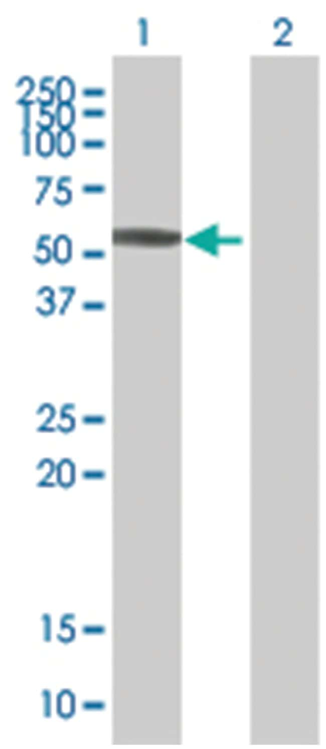 KRT8 293T Cell Overexpression Lysate 2 (Denatured), Abnova 100µL:Life