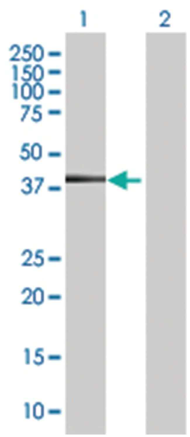 KRT19 293T Cell Overexpression Lysate 2 (Denatured), Abnova 100µL:Life